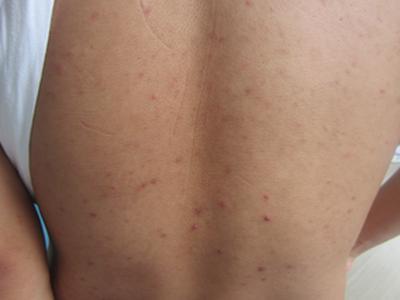 红皮型银屑病应该如何治疗