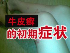 什么原因导致牛皮癣恶化?.jpg