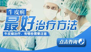 郑州哪家医院治牛皮癣好?